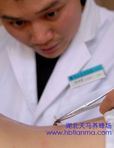 中医讲解:蜂毒的注射疗法