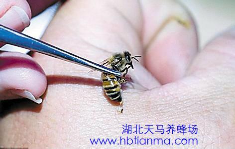 省中医蜂疗门诊成永明:快乐蜜蜂疗法防治儿科病