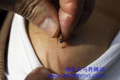 被蜜蜂蛰了先把刺拔了